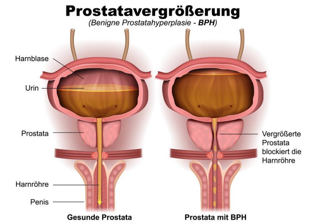 naturheilmittel gegen próstata